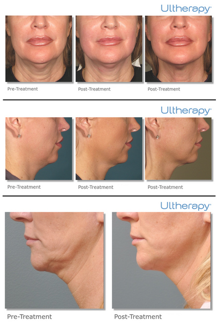 Ultherapy